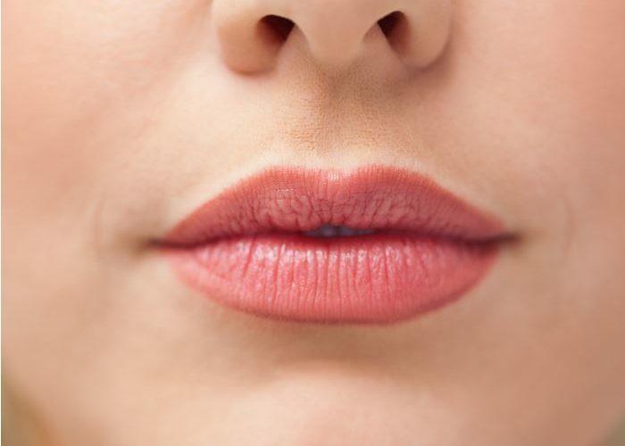 woman-sunburned-lips