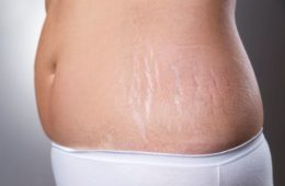 Woman Showing Her Stretch Marks
