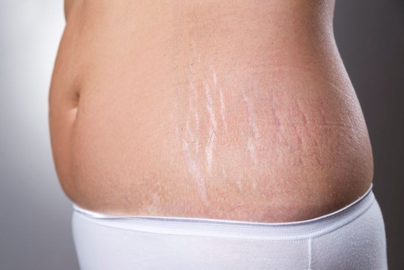 How to Get Rid of Stretch Marks: The Ultimate Guide