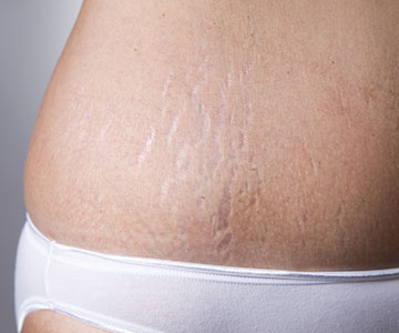 What Are Stretch Marks