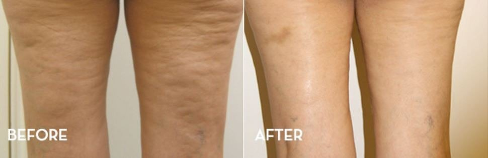 Image result for cellulite thighs before and after