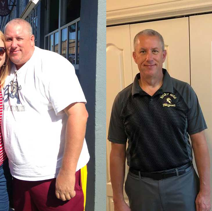 Barry Parkes Weightloss Journey
